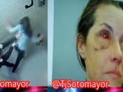 Snow Queen Gets Her Eye Orbital, Nose & Face Broken By Brutal White Boy Cops!  (Video)