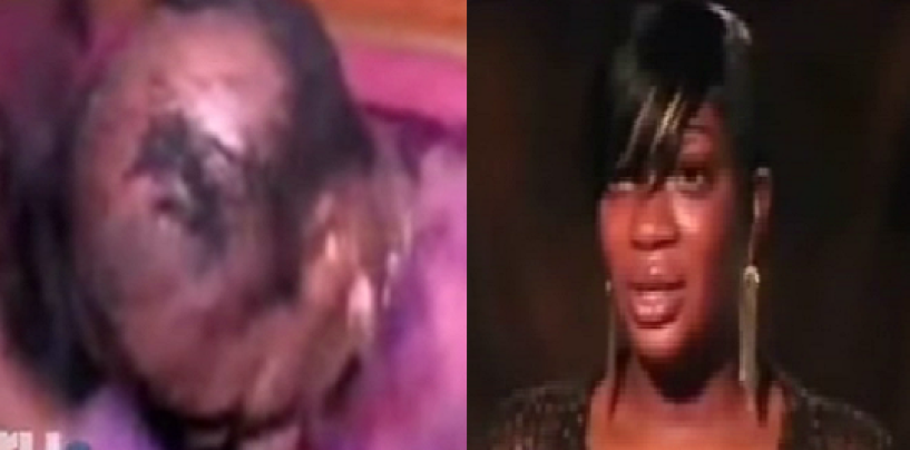 HCBW – Black Woman Has Her Weave Pulled Off During A Fight & Says The Humiliation Made Her Lose! #IShitUNot (Video)